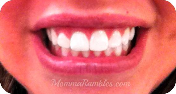 Achieve a Whiter Smile Thanks to Smile Brilliant Teeth Whitening System